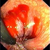 Gastroenterologie Hradec Králové - Krvácející hemeroid